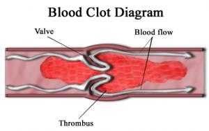 blood clot diagram, embolism